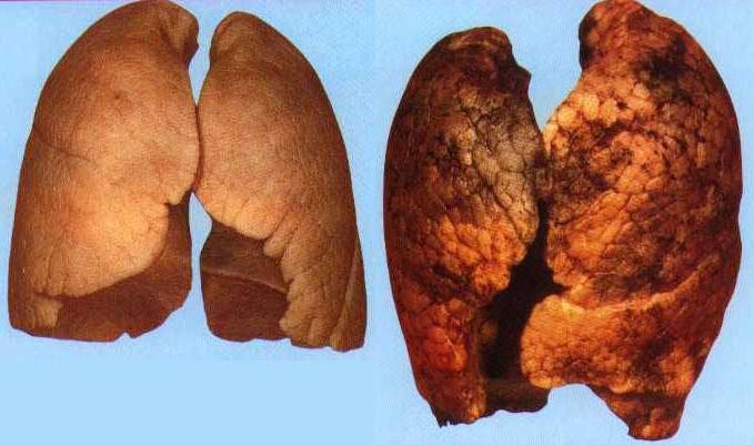 Лёгкие курильщика и здорового человека картинка